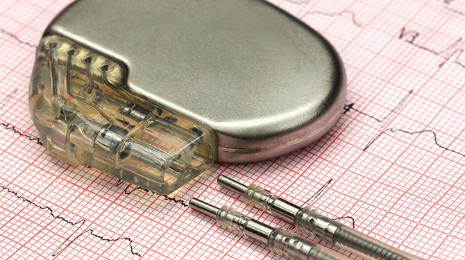 Catholic Health Cardiac Implants Pacemaker